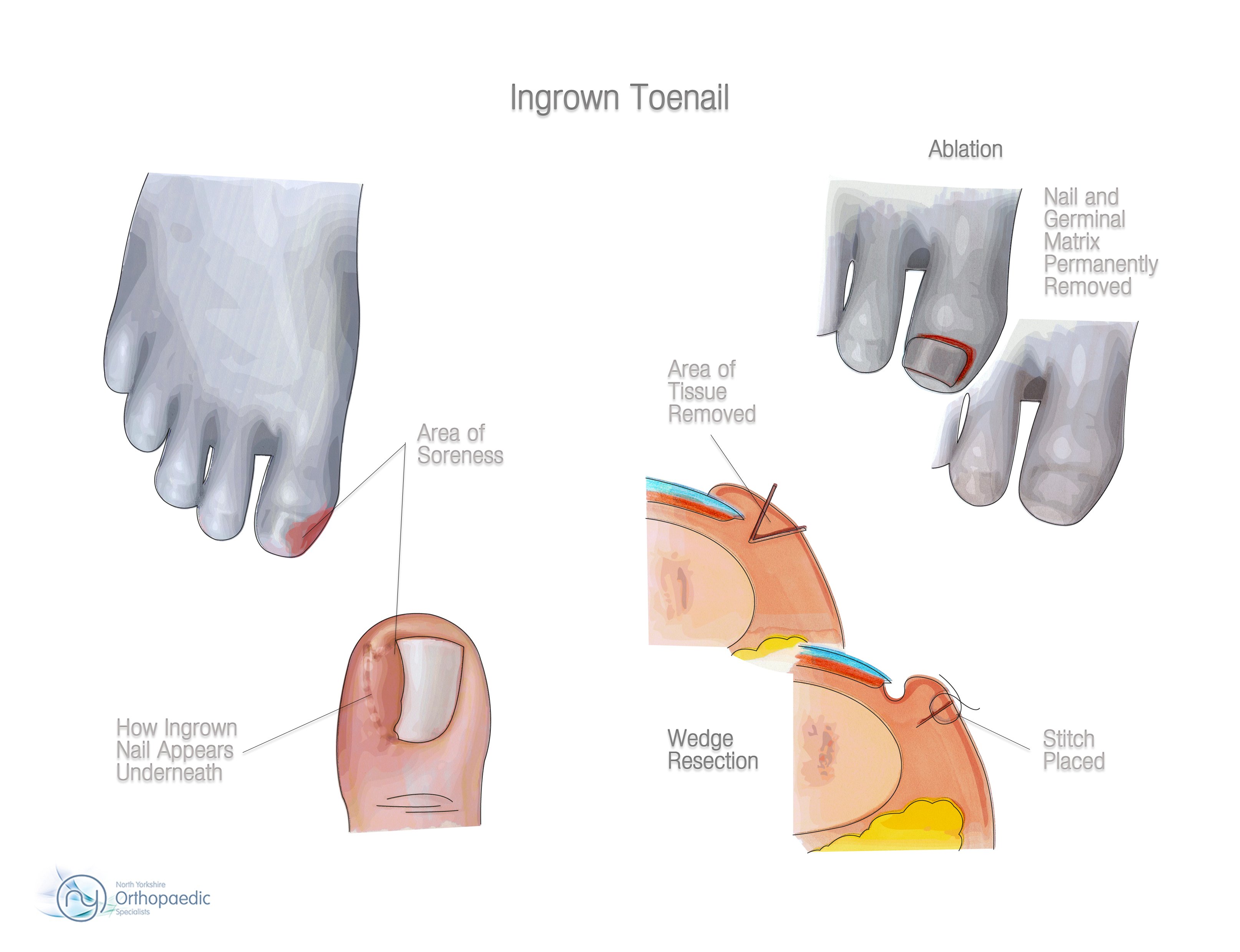 Ingrown Toenail | Orthopaedic - James Stanley